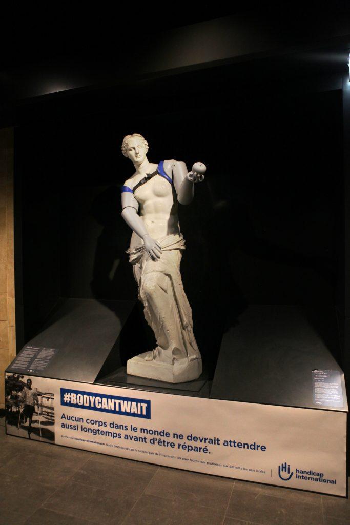 Des prothèses pour la Vénus de Milo et les statues du Parc Monceau